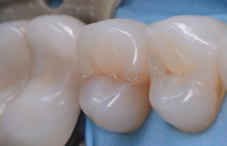 cracked-teeth-s1