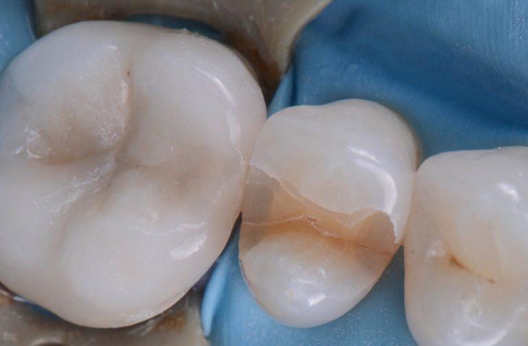 cracked-teeth-s2