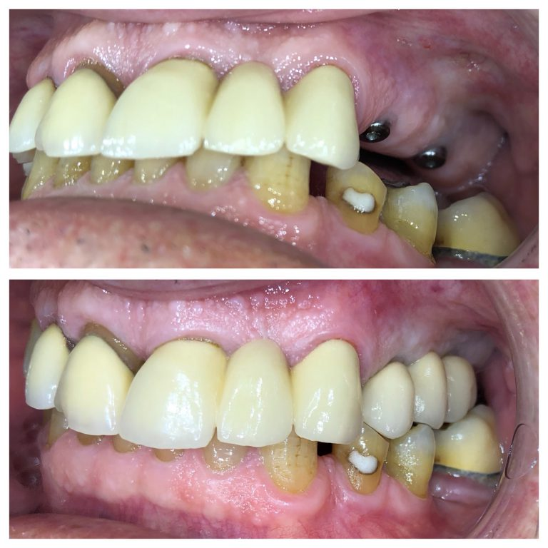 dental-implants-s1