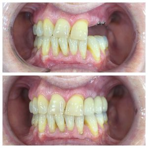 dental-implants-s2